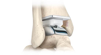 Stryker_Total_Ankle_Implant